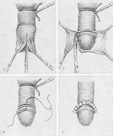Схема выполнения обрезания
