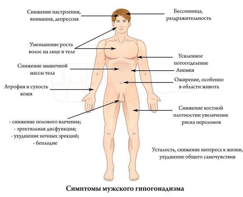 Симптомы мужского гипогонадизма