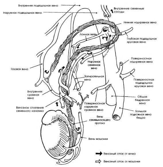 Анатомия варикоцеле
