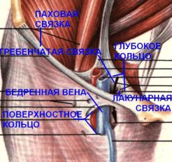 Бедренный канал (поверхностное кольцо)