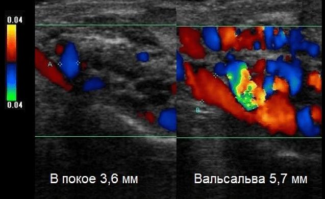 Эхограммы гроздевидного сплетения при варикоцеле