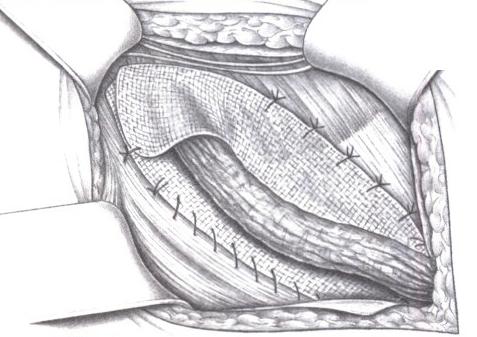 Конечный результат: из двух концов сетки формируют внутреннее паховое кольцо (реконструкция)