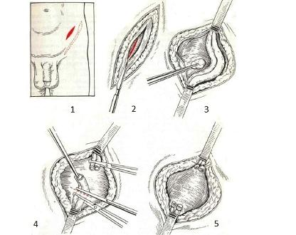 Операция по Паломо