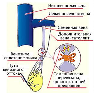 По Иваниссевичу