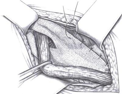 Подшивание сетки к внутренней косой мышце