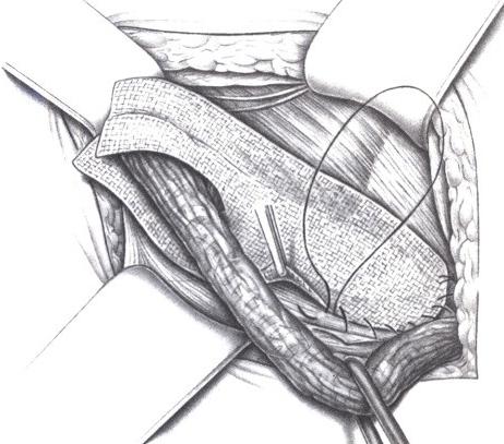 Схема герниопластики по Лихтенштейну (сверху удерживают семенной канатик, идущий в яичко)