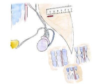 Схема перевязки вен при операции по Мармару