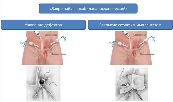 Схема расположения инструментов при лапароскопическом удалении грыжи