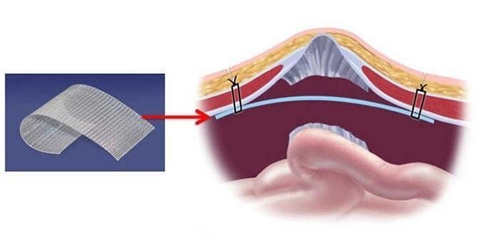 Укрепление брюшины при помощи сетки