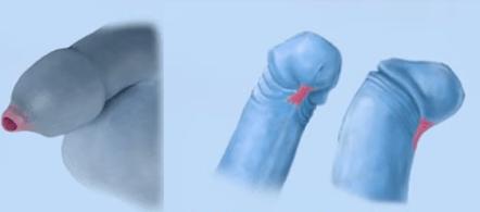 Фимоз из-за патологии соединительной ткани (слева) и короткая уздечка (справа)