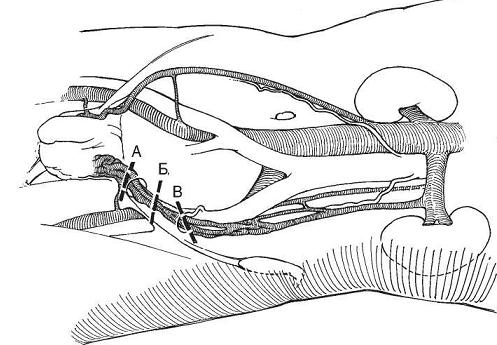 места перевязки вен