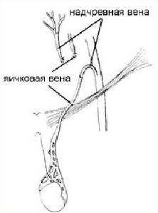 микрохирургическая реваскуляризация