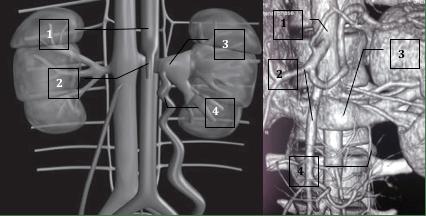 сдавливание почечной вены верхней брыжеечной артерией и аортой