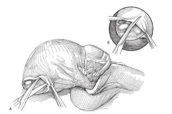 Через разрез выпускают кисту вместе с яичком (А), накладывают зажимы (Б)