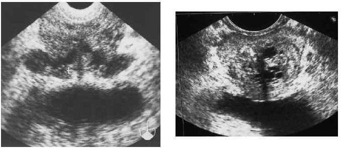 Конгестивная (застойная) форма хронического простатита