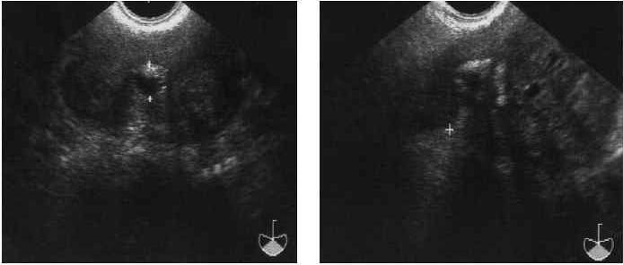 Отечная форма хронического простатита