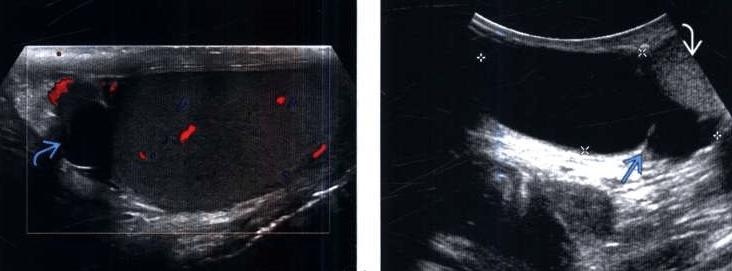 Слева маленькая, клинически незначимая киста на головке придатка, справа – крупная многокамерная