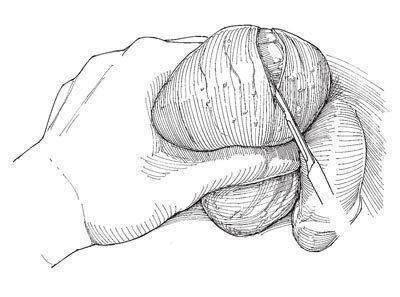 Сперматоцелэктомия