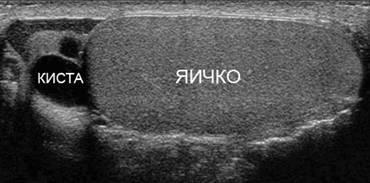 УЗИ-снимок кисты придатка