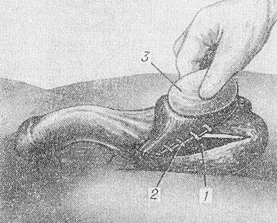 Операция Винкельмана