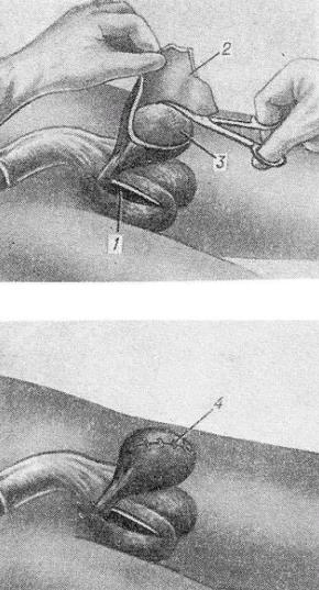 Операция по Бергману