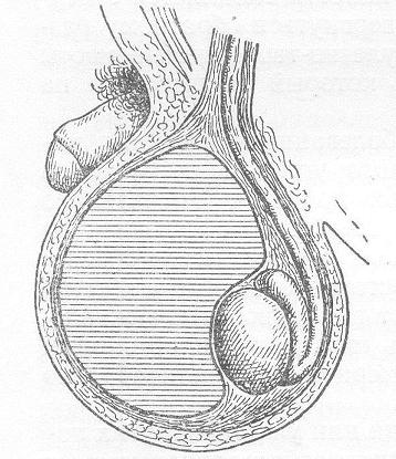 Схема гематоцеле: крупное образование придавило яичко вбок книзу