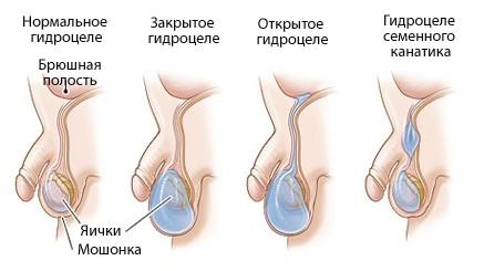 Типы гидроцеле