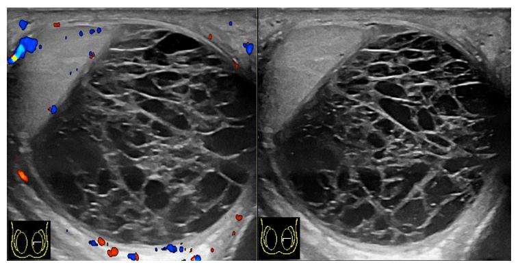 УЗИ гематоцеле с допплерографией и без нее (справа): множество фибриновых нитей, кровоток отсутствует, яичко оттеснено вбок