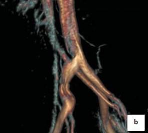 Стеноз левой подвздошной вены на ангиограмме