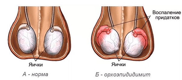 Орхоэпидидимит