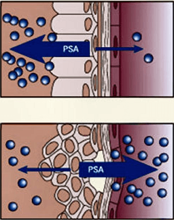 Целый и нарушенный клеточный барьер простаты