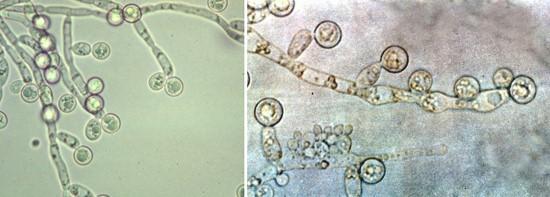 Фото грибка кандиды в микроскоп
