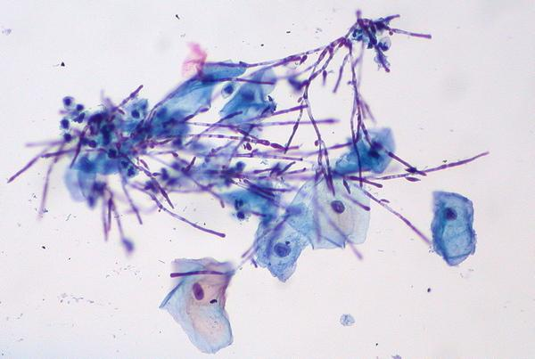 Кандидоз под микроскопом