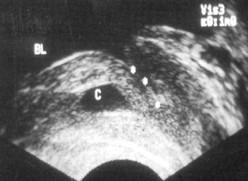 Киста предстательной маточки обозначена буквой С, звездочками на второй эхограмме обозначен мочеиспускательный канал