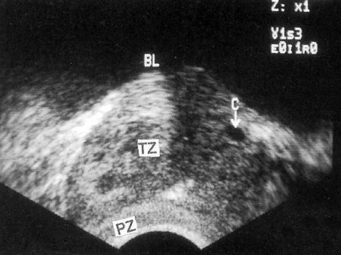 Маленькая кистозная полость на фоне гиперплазии простаты (буква С) в переходной зоне (TZ)