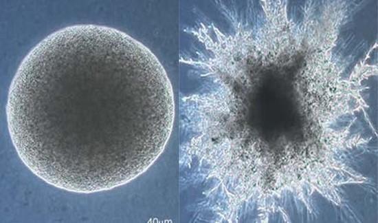 Округлая и активная мицеллярная форма грибка кандиды