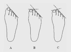 форма стопы