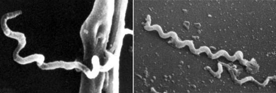 Бледная трепонема под микроскопом