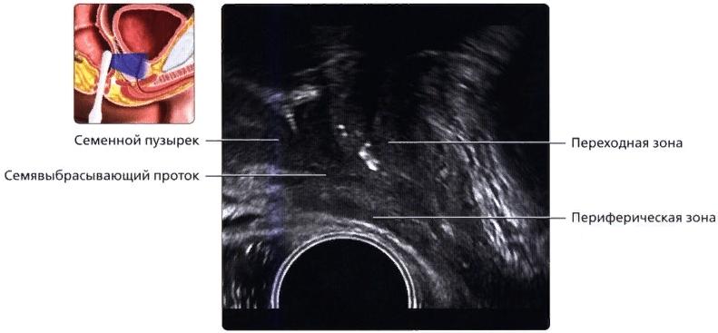 Кальцификаты в районе уретры (белые точки)