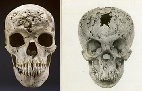 Поражение костей черепа