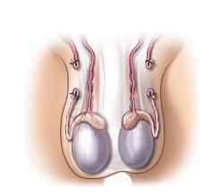 После вазэктомии: культи перевязанных протоков