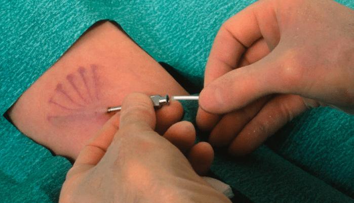 Введение препарата под кожу плеча при помощи специального троакара