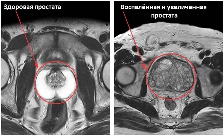 Простатит на МРТ