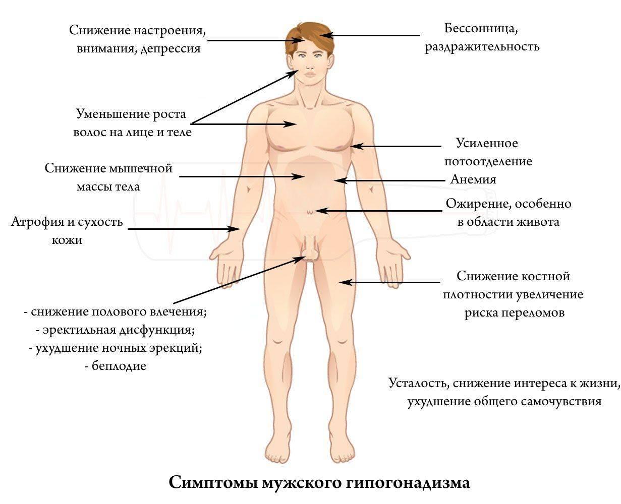 Симптомы гипогонадизма