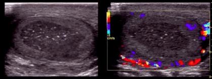 Центральный инфаркт после удаления паховой грыжи (герниопластики)