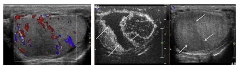 Треугольные области инфаркта (указаны стрелками)