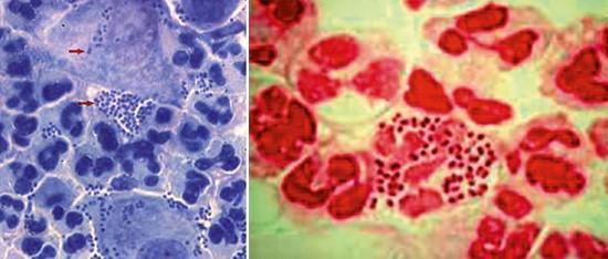 Окрашенные гонококки в мазках под микроскопом